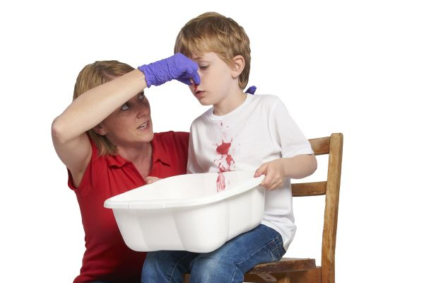 çocuklarda burun kanaması